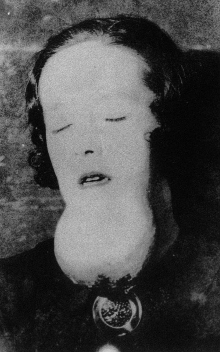 """Las """"radium girls"""": las olvidadas chicas muertas por una intoxicación radiactiva en una fábrica"""