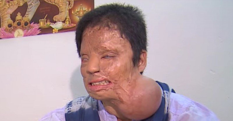 Esta adolescente fue atacada por tres hombres que trataron de violarla. Diez años después está así