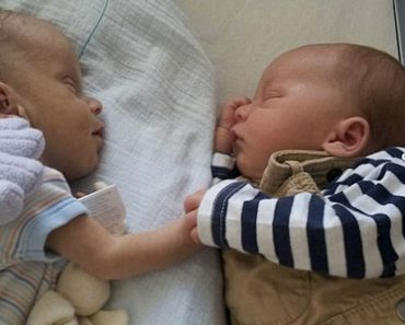 Este recién nacido sufre convulsiones y hemorragias cerebrales, hasta que ponen a su hermano gemelo en su incubadora