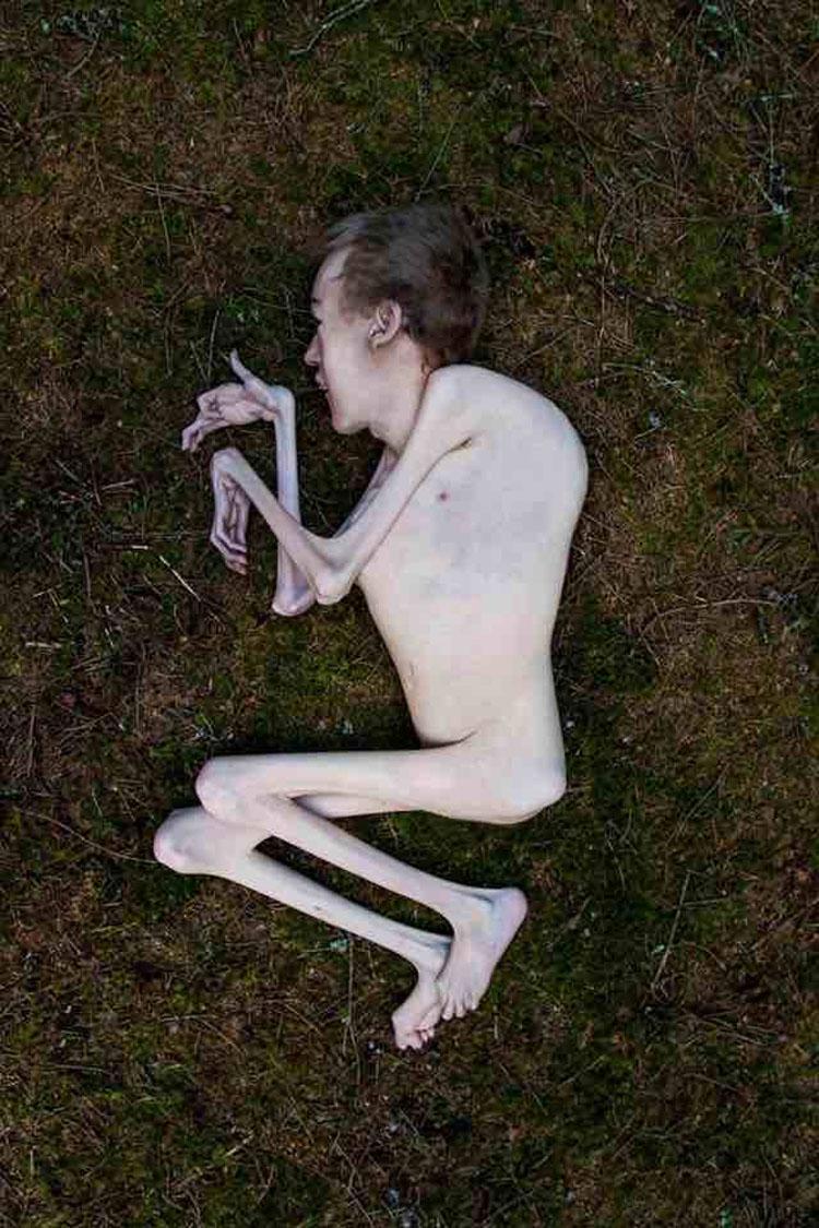 Este político noruego inspira al mundo con sus fotos desnudo en el bosque