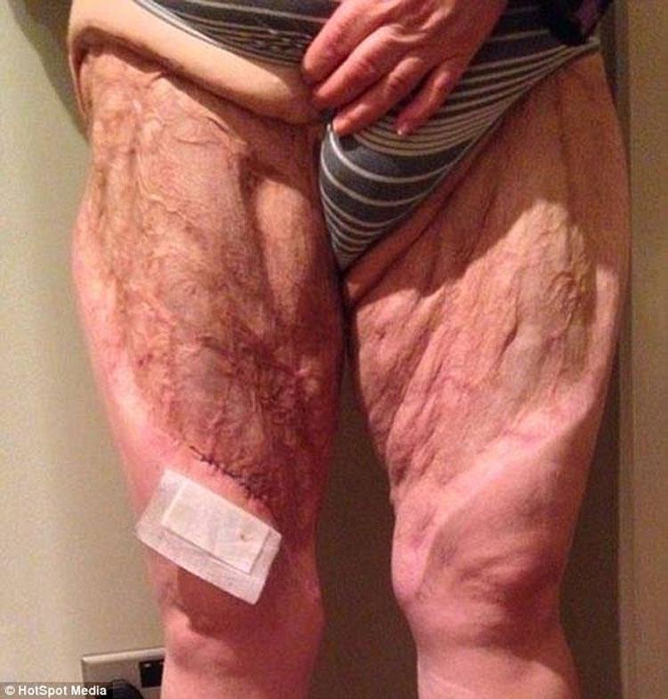 Esta mujer casi pierde las piernas debido a este hábito común de higiene